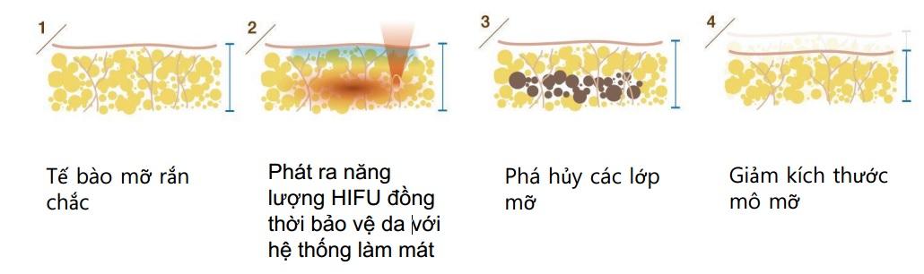 may-giam-beo-hifu-scizer-sonic-dac-tinh-1